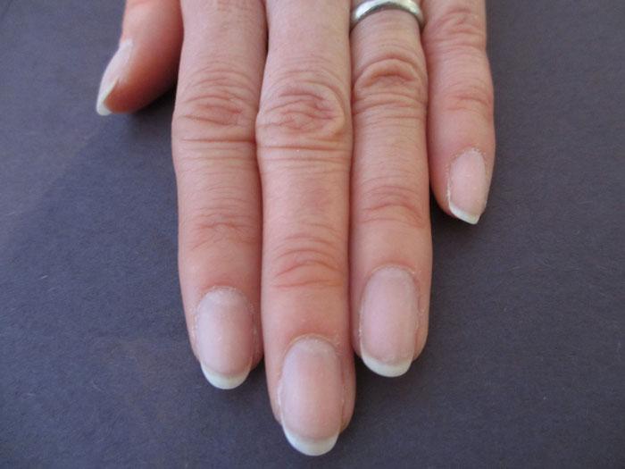 爪のピンクの部分が大きい例