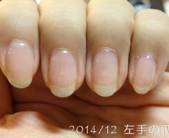 2014年12月の爪(左)