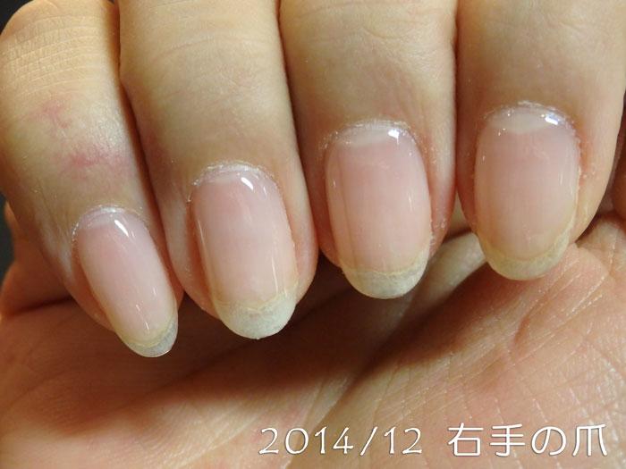 2014年12月の爪(右)