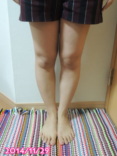 2014年11月の脚