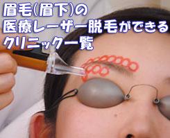 眉毛(眉下)の医療レーザー脱毛ができるクリニック一覧