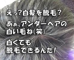 アンダーヘアの白髪をレーザー脱毛
