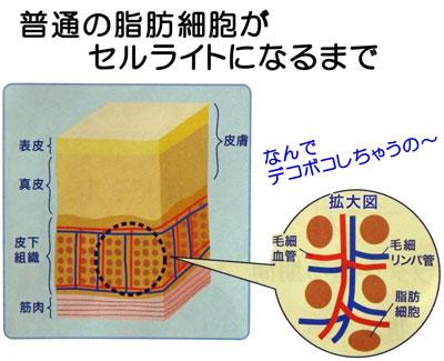 普通の脂肪細胞がセルライトになるまで