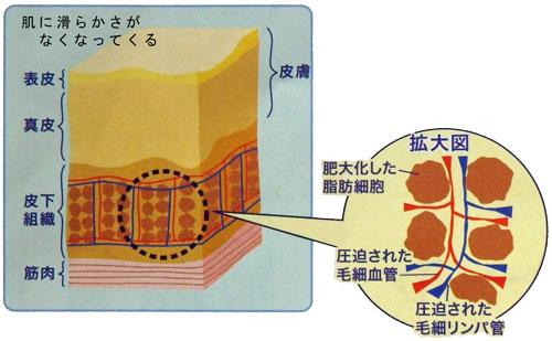 肥大化した脂肪細胞と皮下組織