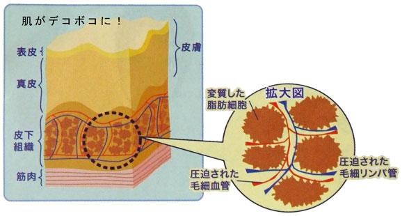 脂肪細胞がセルライト化し、皮膚がデコボコに