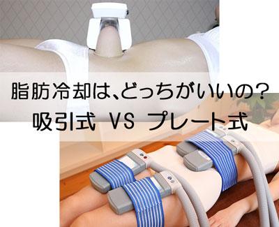 吸引式脂肪冷却と、プレート式脂肪冷却、どっちがいいの?