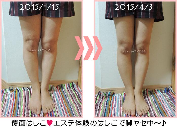 エステ体験のはしごで脚痩せチャレンジ3ヶ月