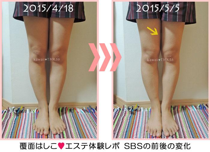 SBS tokyoのエステ体験1回での変化