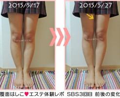 SBS東京エステ3回目の変化