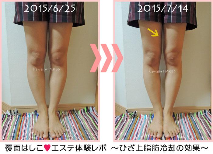 ひざ上の脂肪冷却の効果ビフォーアフター写真