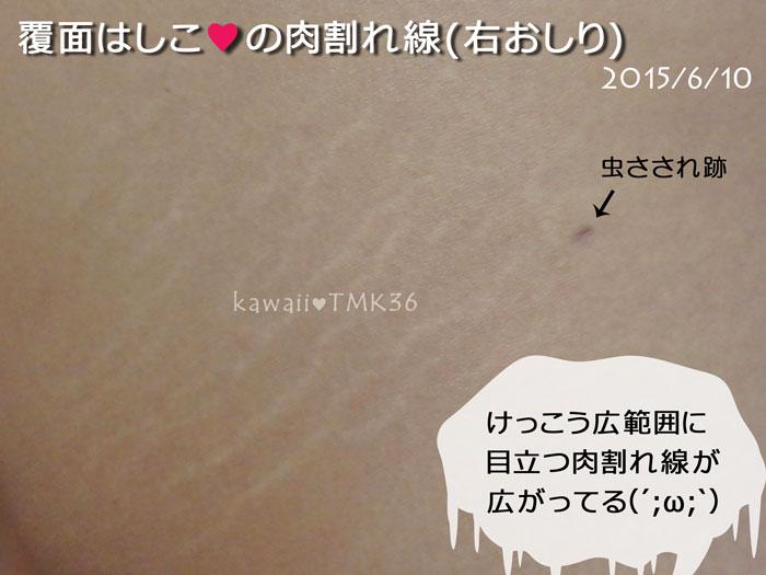 右おしりの肉割れ線(ビフォー)6/10