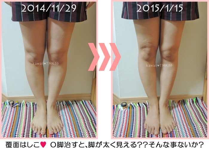第一次O脚改善期の変化