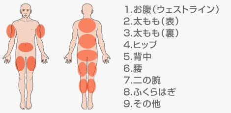 光痩身(リポライト)の施術ができる部位