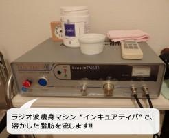 ラジオ波痩身マシン インキュアティバ
