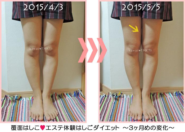 脚ヤセをはじめて3ヶ月目の変化