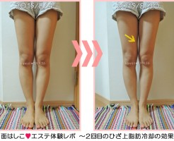 膝上の脂肪冷却2回目の効果