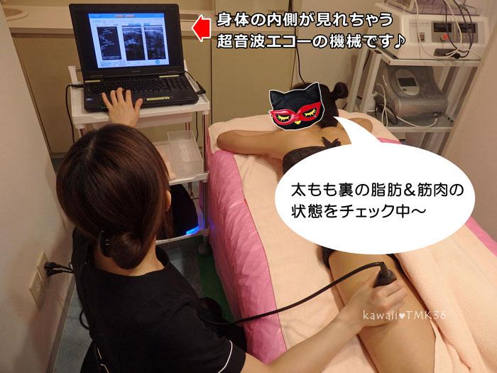 超音波エコーで、脂肪と筋肉の状態をチェック!
