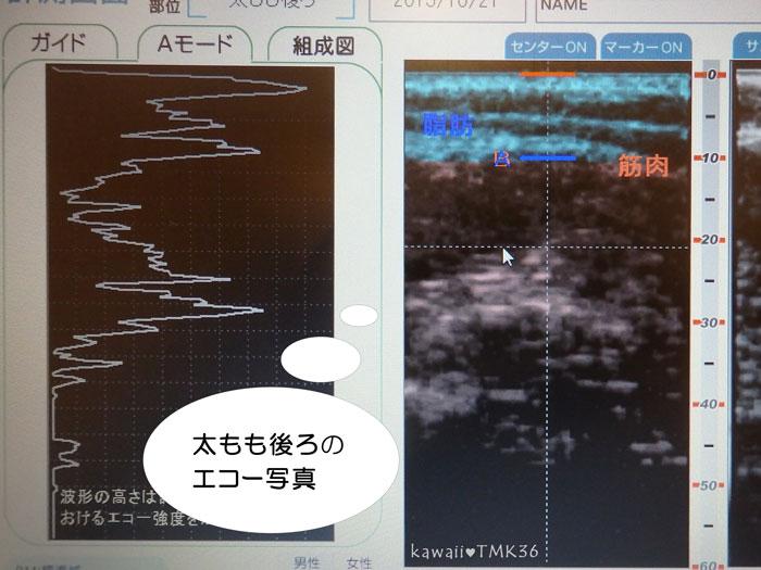 太もも後ろの超音波エコー写真