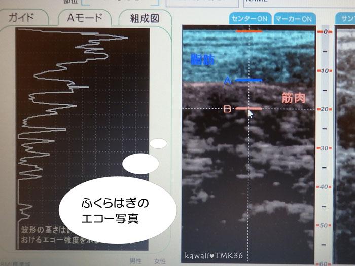 ふくらはぎの超音波エコー写真