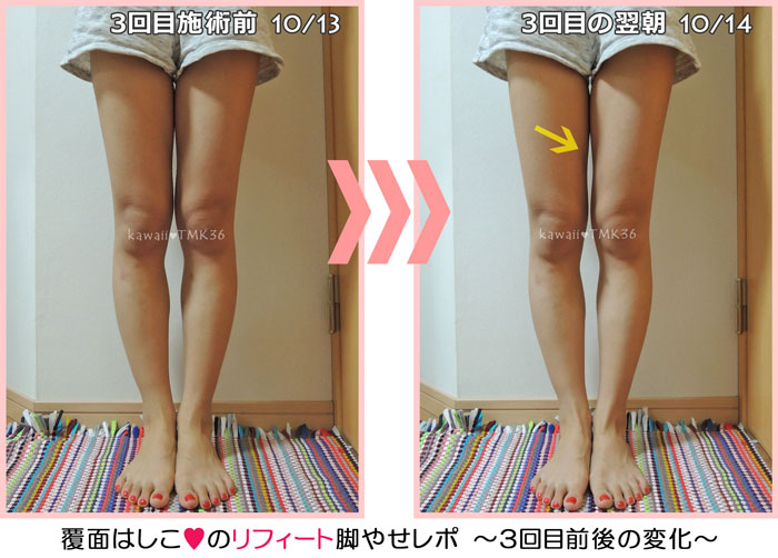 リフィート3回目の脚やせトリートメント前後の変化