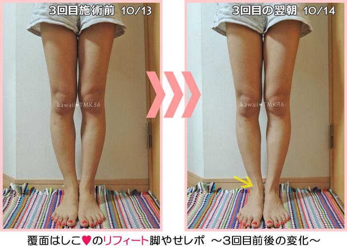 リフィート3回目の脚やせトリートメント前後の変化~足首に注目!