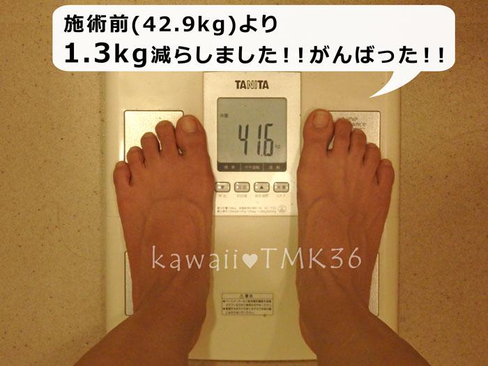 1回の施術で、体重を1.3kg減らしました!
