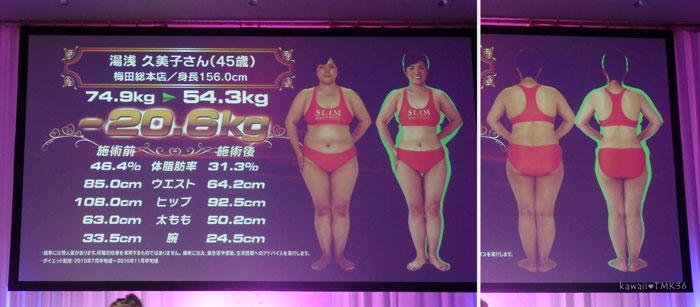 スリムクイーンコンテストで20.6kg痩せた女性