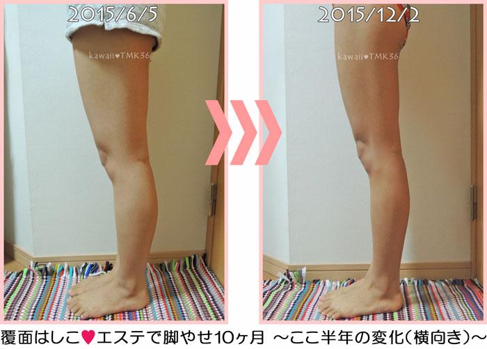 エステで脚ヤセ10ヶ月、ここ半年の変化(横向き)