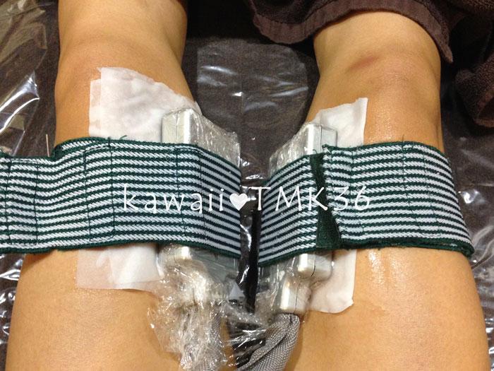 膝上(内側)の脂肪冷却