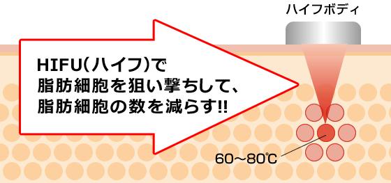 HIFU(ハイフ)で、脂肪細胞を狙い撃ちして、脂肪細胞の数を減らす!!