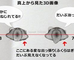 3D立体プロポーション測定で体の歪みを比較!