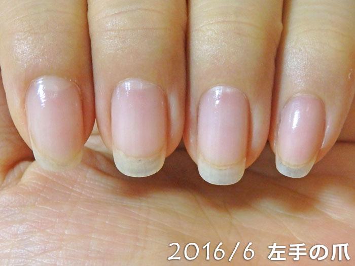 2016年6月の爪(左)