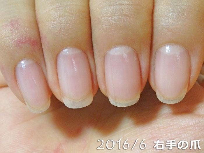 2016年6月の爪(右)