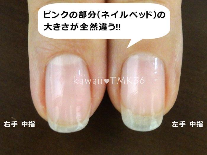 左右の中指で、爪のピンクの部分(ネイルベッド)の大きさが全然違う!
