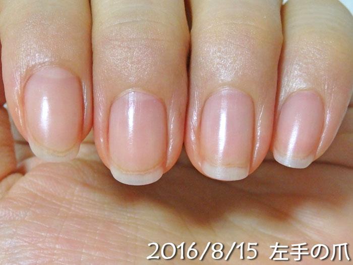2016年8月15日の爪(左)