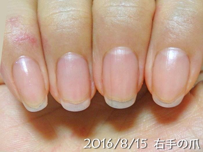 2016年8月15日の爪(右)
