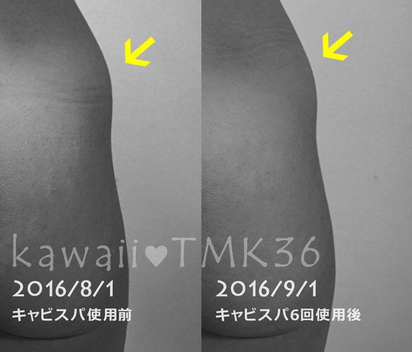 キャビスパRFコア ビフォーアフター写真(2) 腰・ヒップ(右)