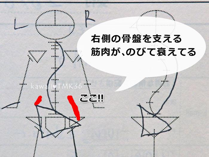 骨盤が歪むと、筋肉にも左右差ができる