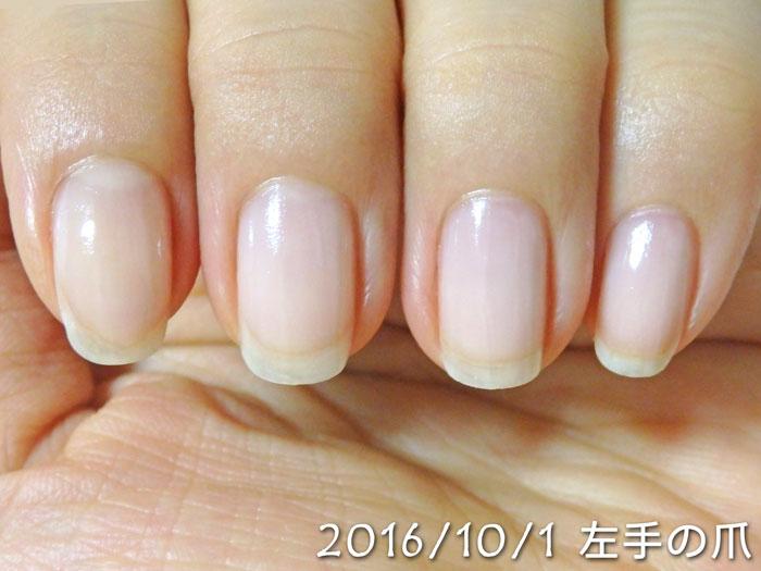 2016年10月1日の爪(左)