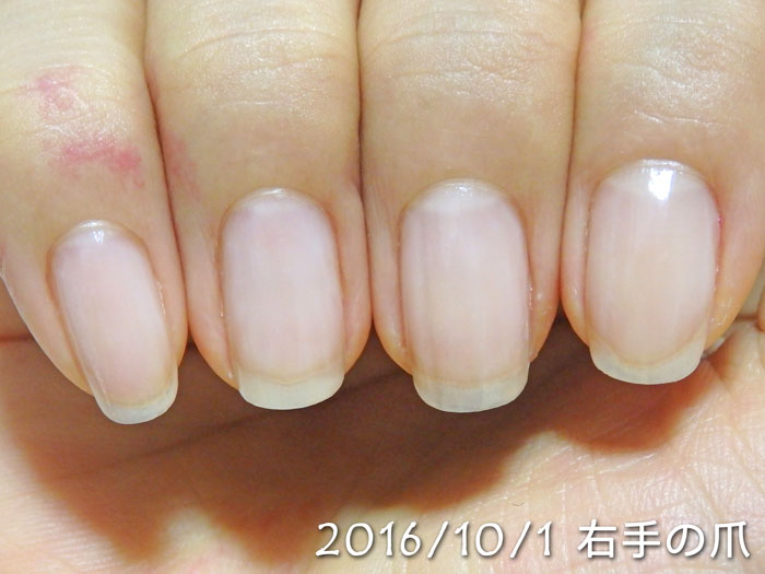 2016年10月1日の爪(右)