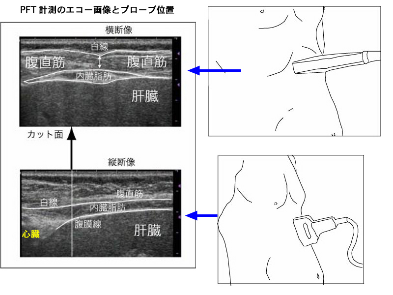 超音波検査でPFTを測る方法