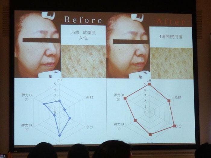 モンテカティーニPARCA(パルカ)の美肌効果 4週間実験(1) 55歳 乾燥肌