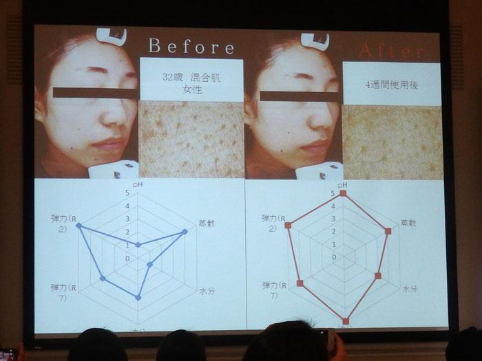 モンテカティーニPARCA(パルカ)の美肌効果 4週間実験(3) 32歳 混合肌