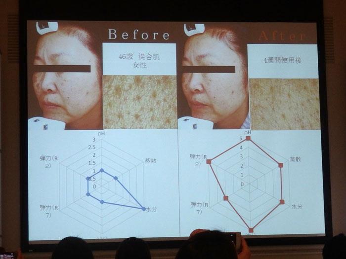 モンテカティーニPARCA(パルカ)の美肌効果 4週間実験(4) 46歳 混合肌
