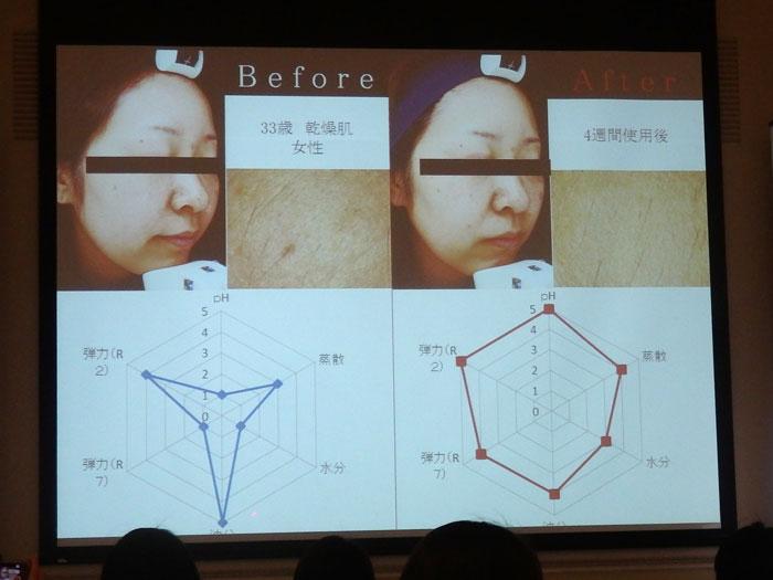 モンテカティーニPARCA(パルカ)の美肌効果 4週間実験(5) 33歳 乾燥肌