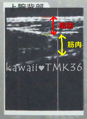 上腕背部(二の腕背中側)の超音波画像