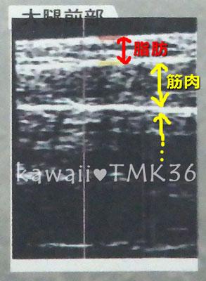 大腿前部(前もも)の超音波画像