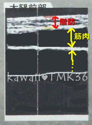 理想的な大腿前部(前もも)の超音波画像