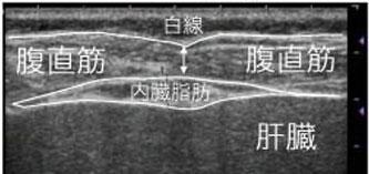 医療用の超音波検査装置でみた腹部超音波画像