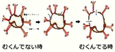 リンパ管の入口は、浮腫むと大きくなる